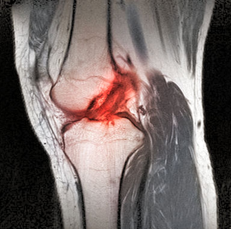 Anterior cruciate ligament tear, CT scan