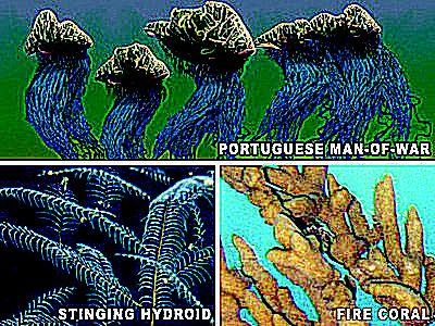 Stinging Hydroids - Facts, Treatment, Basics