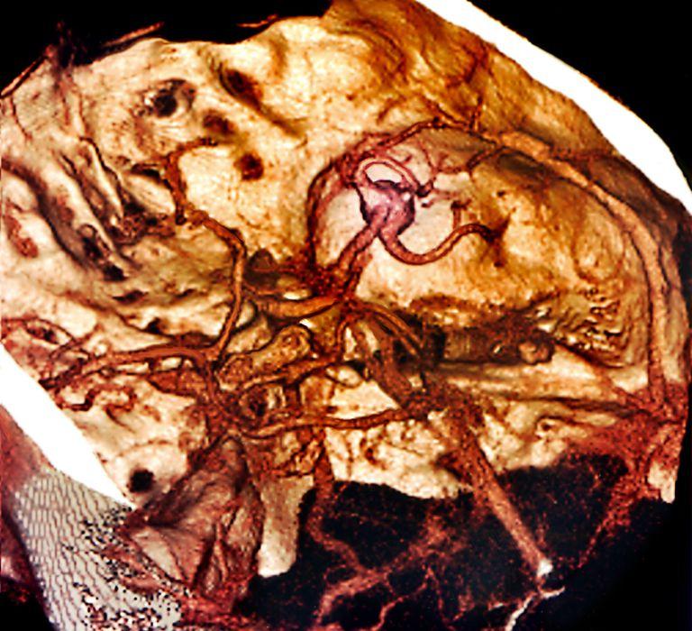 Brain haemorrhage, 3D angiogram