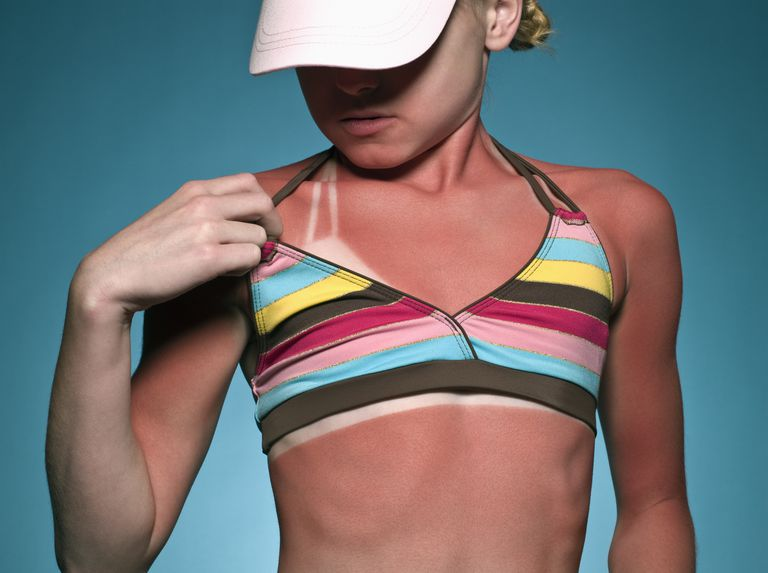 A low SPF sunscreen can lead to a sunburn.