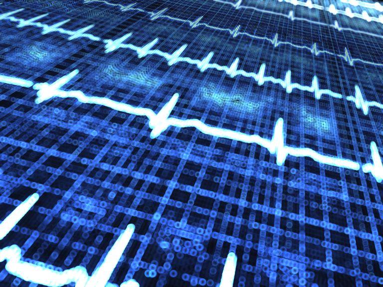 Fibrilación ventricular: síntomas y tratamientos