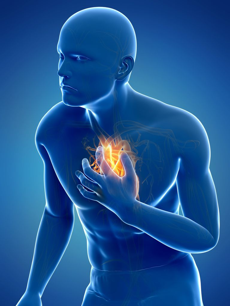 Síntomas del infarto
