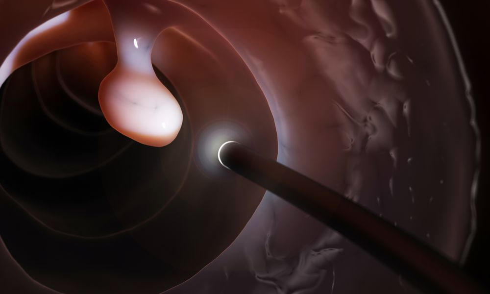 Polyp Removal