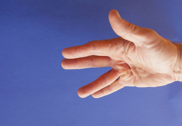 What Is Dupuytren S Contracture