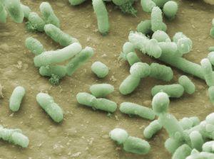 SEM Micrograph of E coli on keyboard