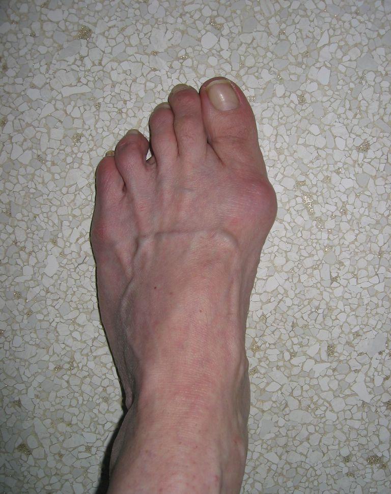 Bunion/HAV Left Foot