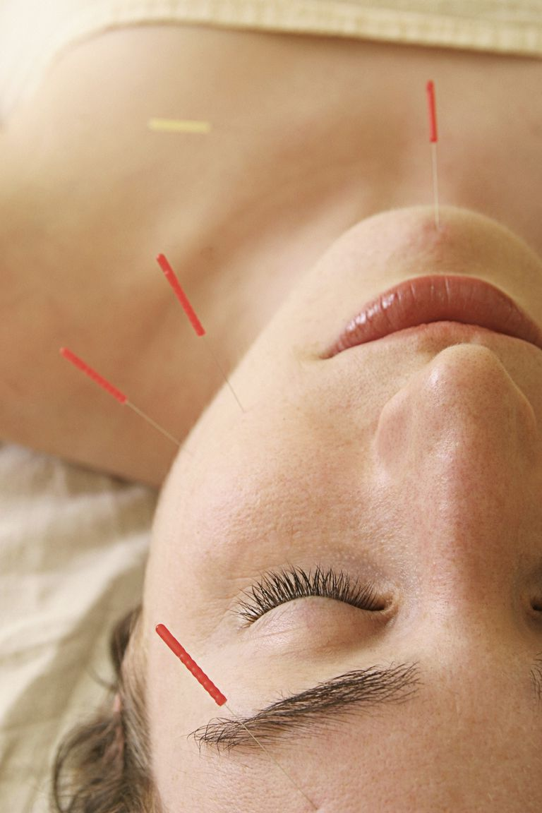 acupuncturePhotoLibrary.jpg