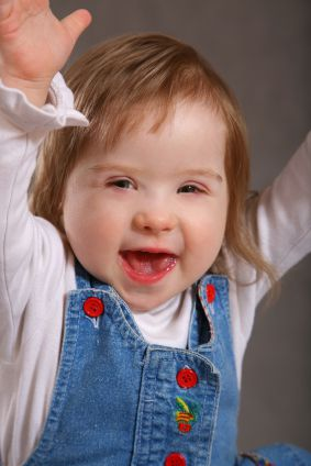 A toddler with Down syndrome.