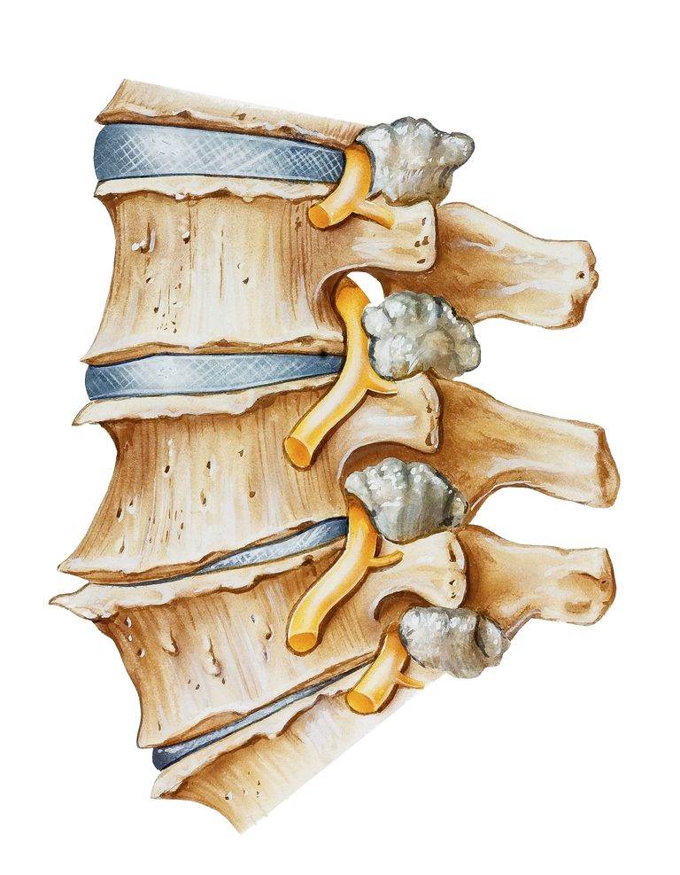 Depiction of a spine with spondylosis and facet joint hypertrophy