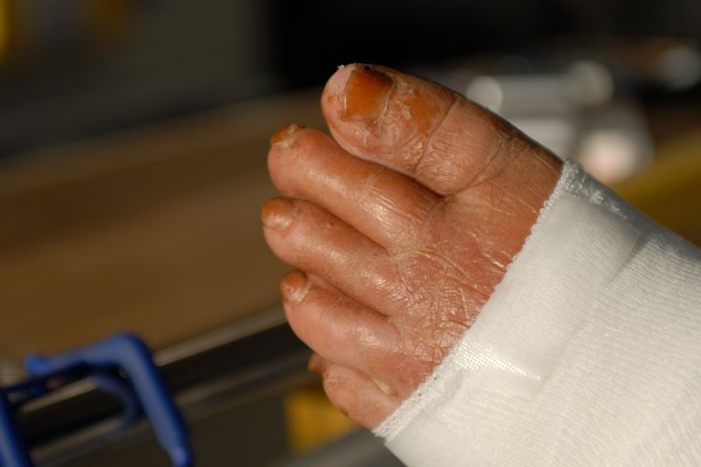 Cellulitis on the foot.