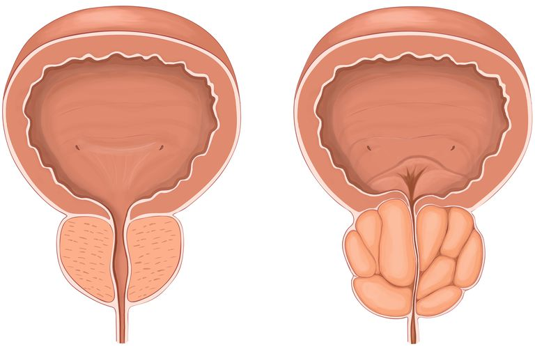 Anterior view showing normal versus enlarged prostate gland