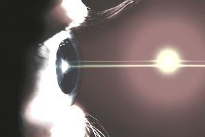 Illustration of eye laser surgery