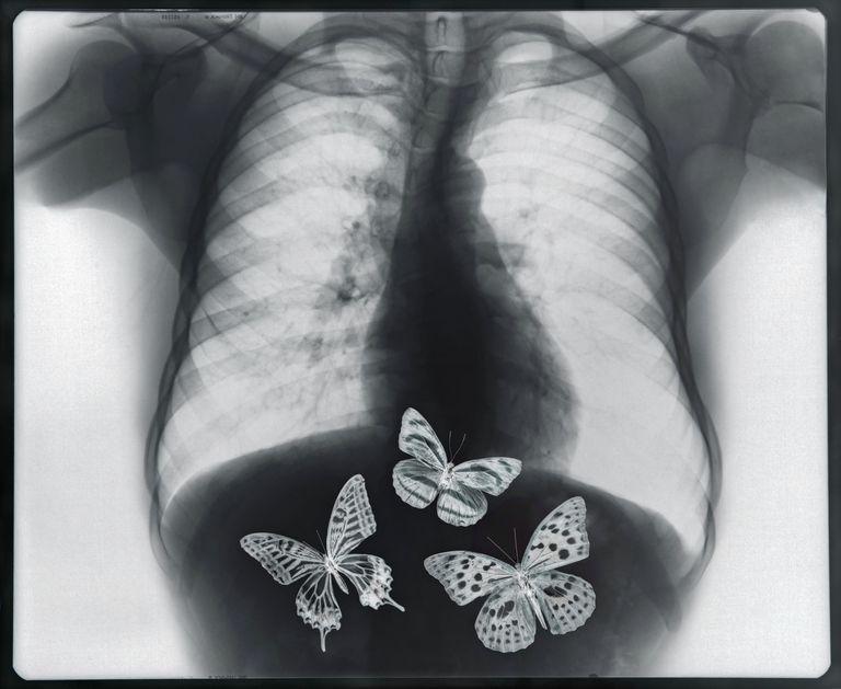 Radiografía de mariposas en el estómago