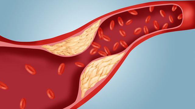 Prueba de colesterol y diabetes