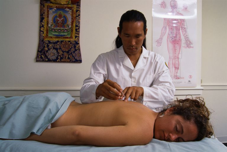Acupuncturist Inserting Needles