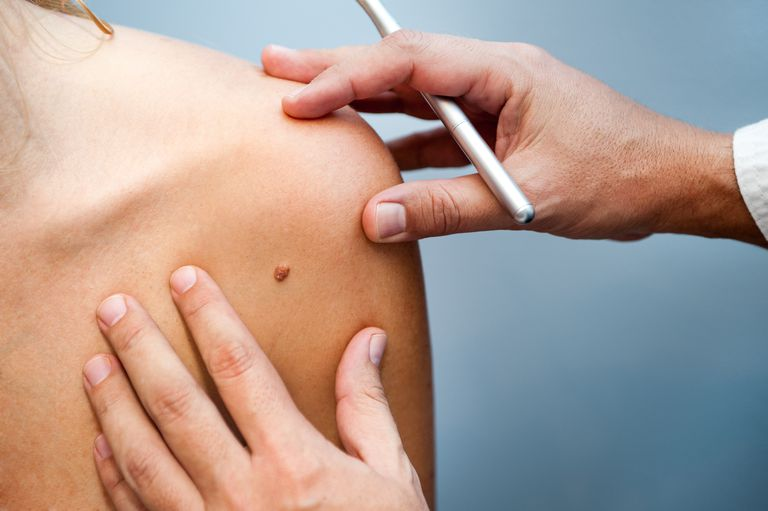 surgeon looking at region on the back for melanoma removal