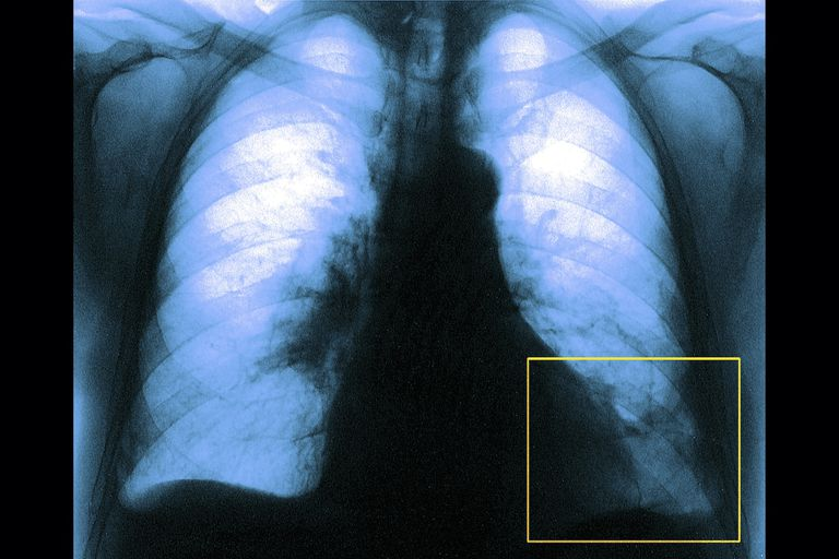 X-ray image of pulmonary embolism