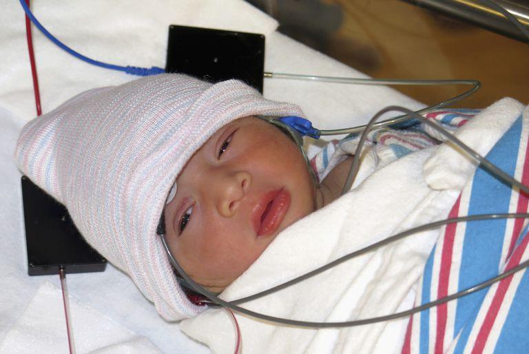 Newborn baby having hearing test