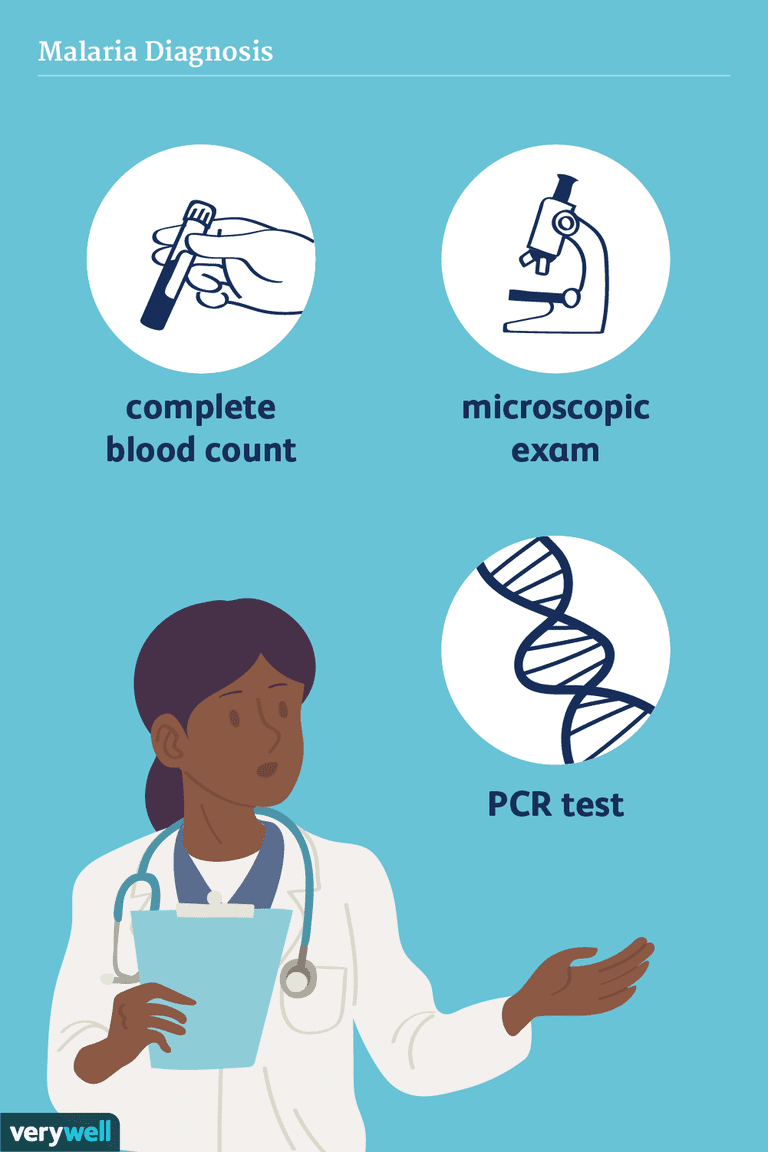 malaria diagnosis