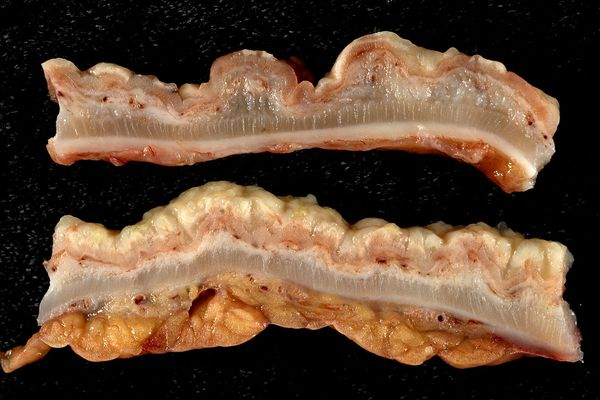 Longitudinal sections through colon wall. The upper slice, which was from the proximal colon, shows discrete pseudomembranes. The lower slice shows confluent involvement in the distal colon. Pathological and histological images courtesy of Ed Uthman at flickr.