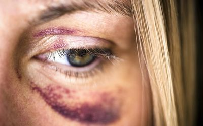Natural Ways To Treat A Black Eye