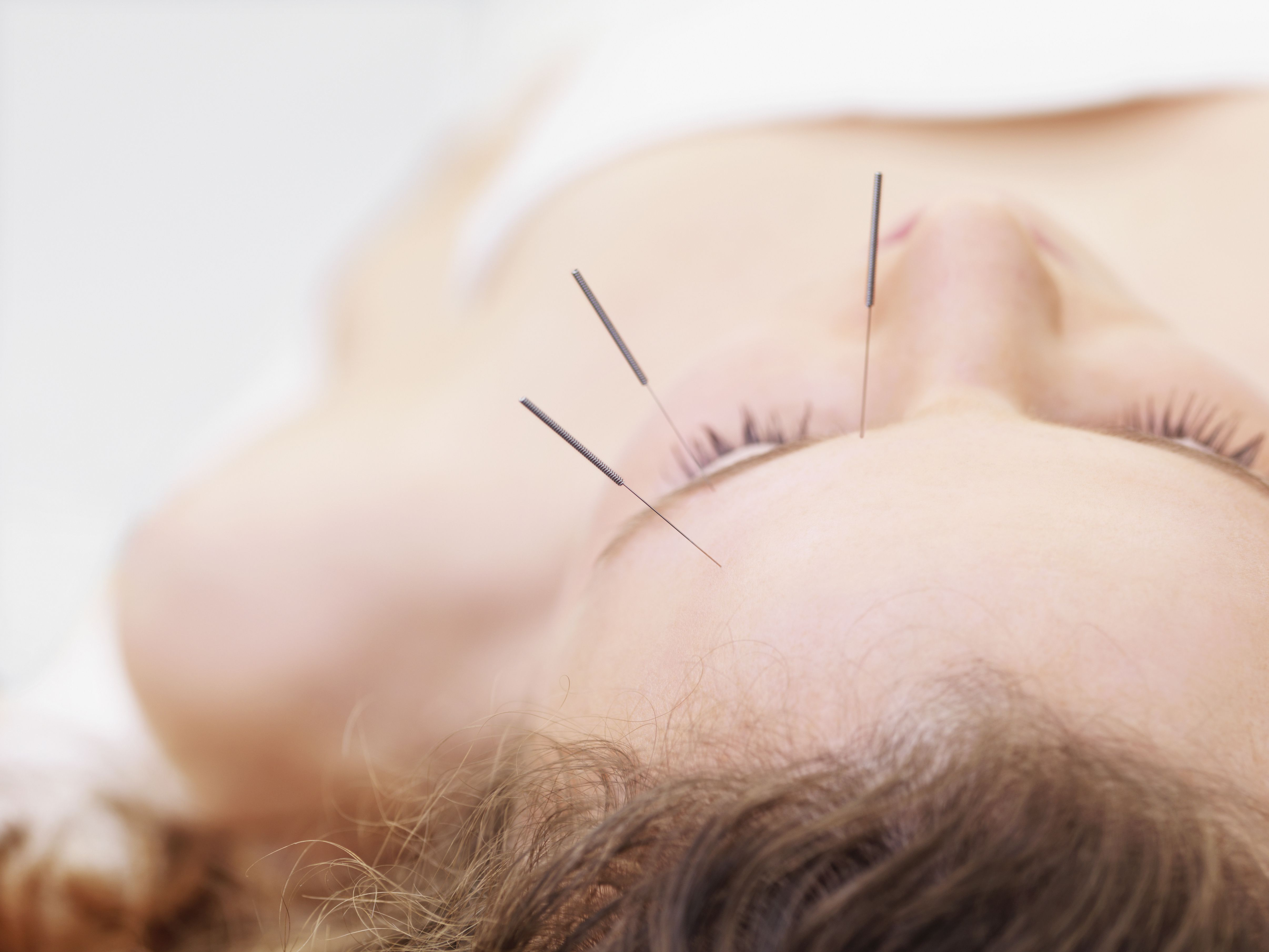Acupuncture for Asthma Symptoms