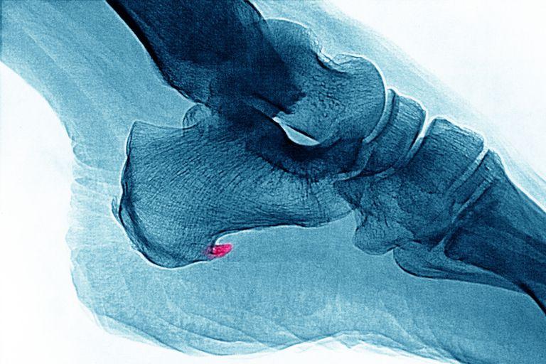 Enthesopathy X-Ray