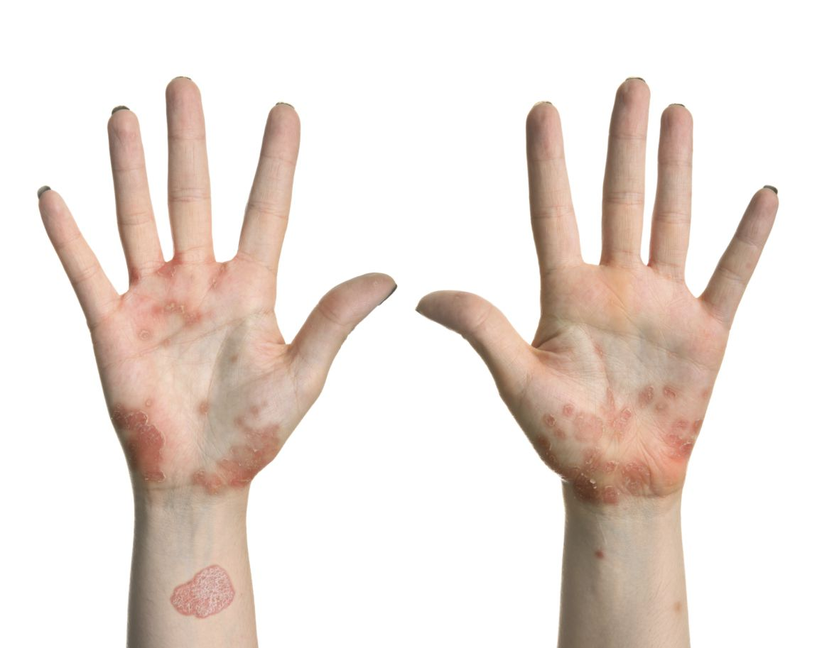 What Are the Different Types of Pustular Psoriasis?