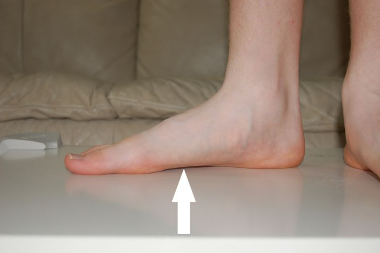Flat Feet Causes And Associated Medical Problems