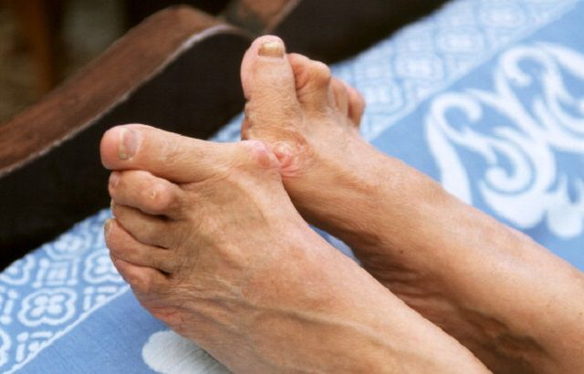 Elderly woman with bunions on her feet