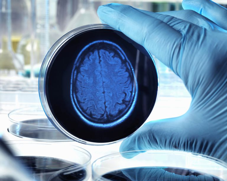 Scientist holding a petri dish with a brain scan illustrating research into dementia, alzheimers and other brain disorders.