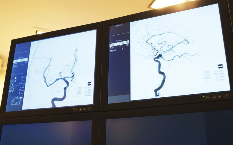 A cerebral angiogram used to visualize brain vessels and look for aneurysms.