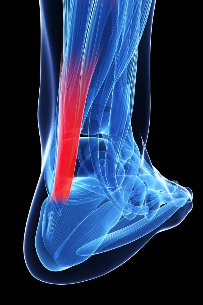 The Achilles tendon.