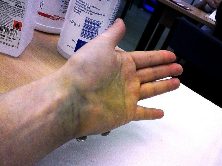 fractured hand