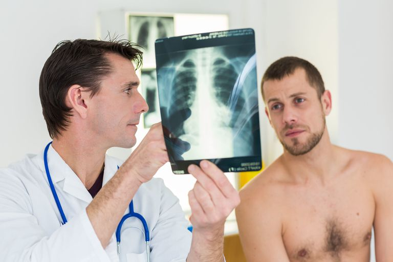 Doctor examining and commenting patient's lungs X-ray.