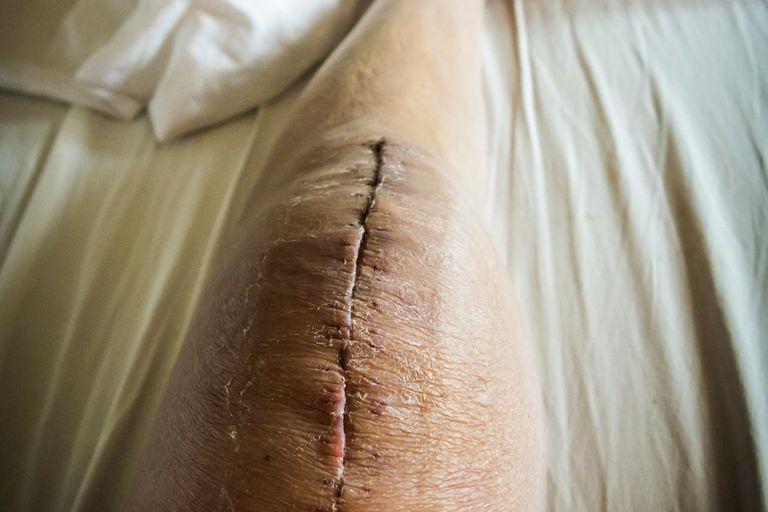 Healing surgical wound on knee