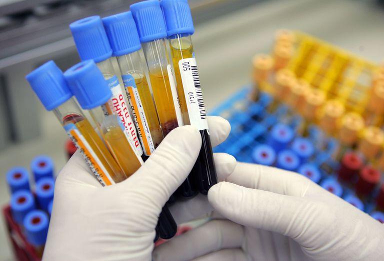 Blood tests for thyroid disease, including TSH, Free T4, Free T3, antibodies