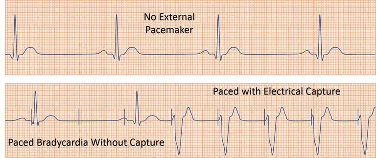 ecg rhythm showing pacer capture