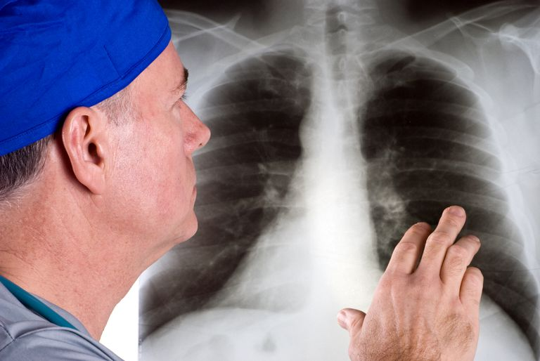 doctor looking at a chest x-ray for lung cancer