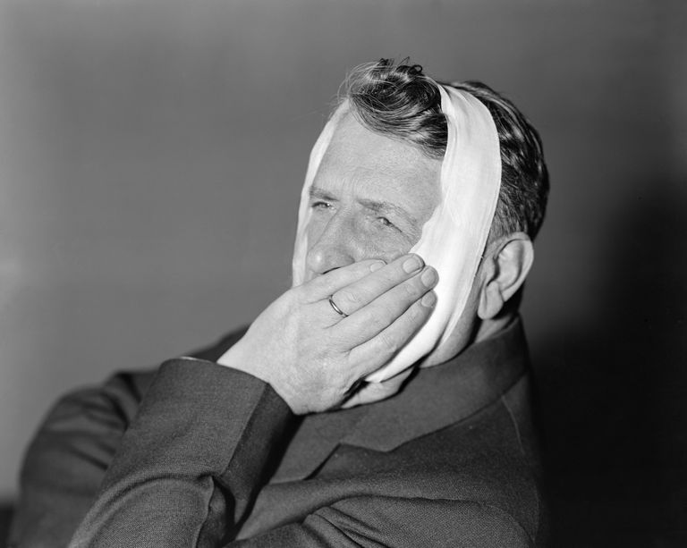 Man with bandage around head, holding jaw.