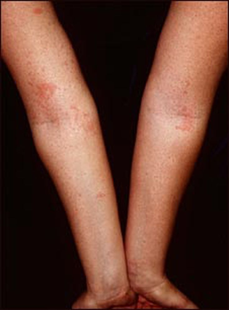 Itchy skin rash pictures
