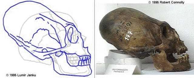 Remains: Elongated Skull