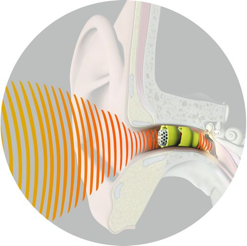 Picture of Lyric extended wear hearing aid from Insound Medical