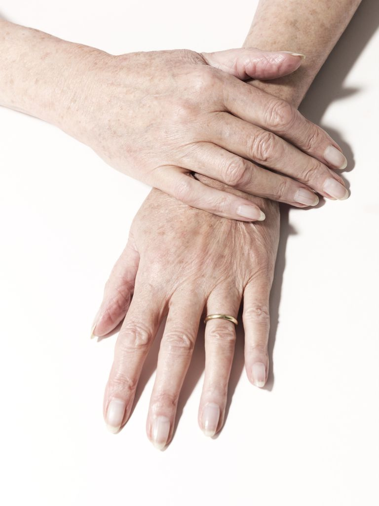 Nail Problems in Psoriasis