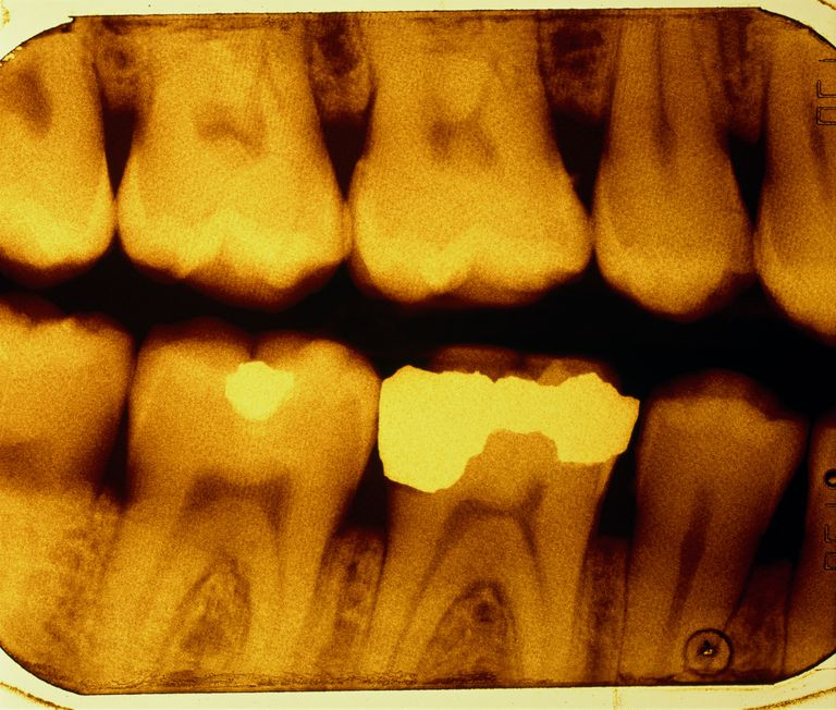 x-ray of dental fillings
