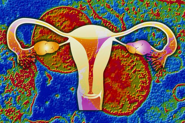 Chlamydia infection: bacteria & artwork of uterus