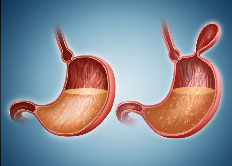 Stomach with and without hernia