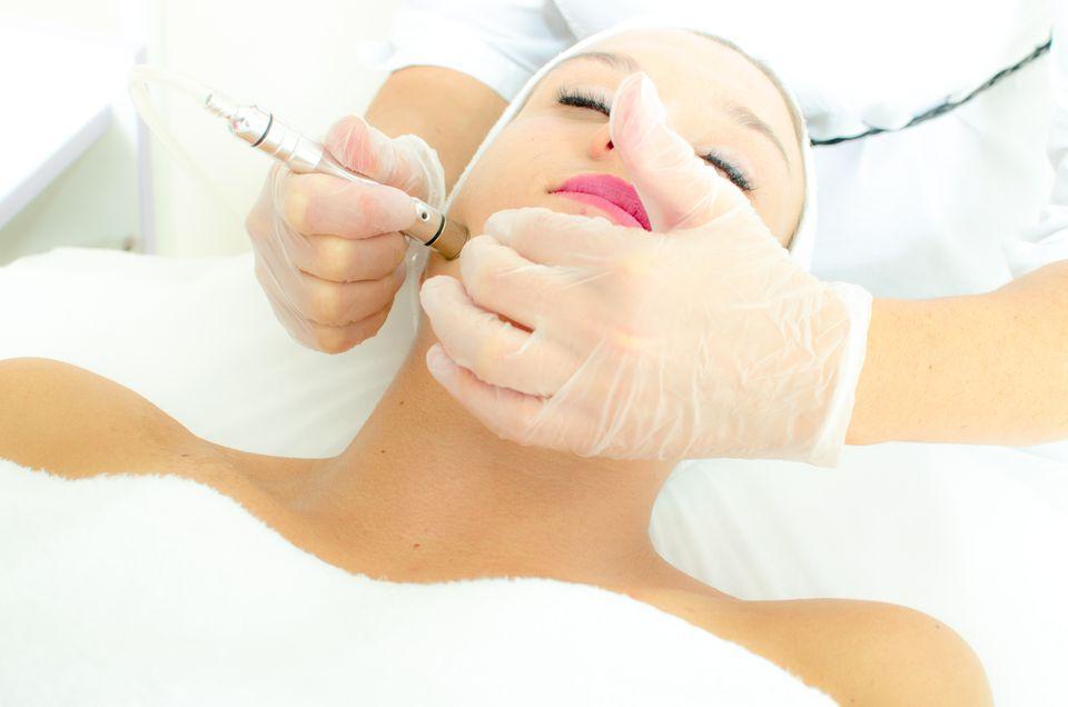 Woman having microdermabrasion