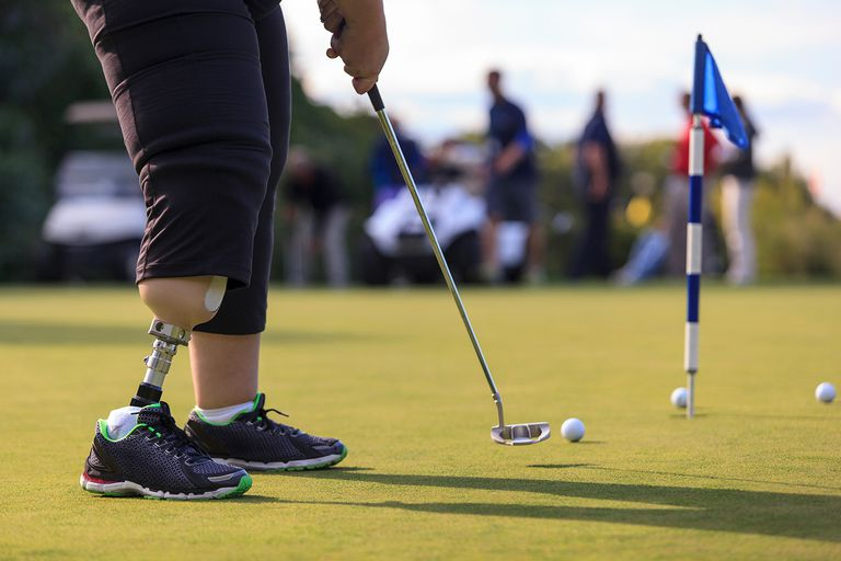 Woman with prosthetic leg at golf putting green.