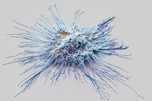 Dendritic cell as visualized using scanning electron microscopy, artistic rendering. Paul Langerhans identified this immune cell in the skin